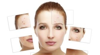 beauty-cream-acne-thinkstock-2